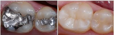 dentist near me amalgam and composite filling