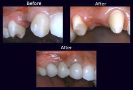 Dental Bridge dentist near me