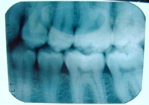 Brookhaven Dentist Near Me x-rays