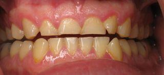 Roswell Dentist near me