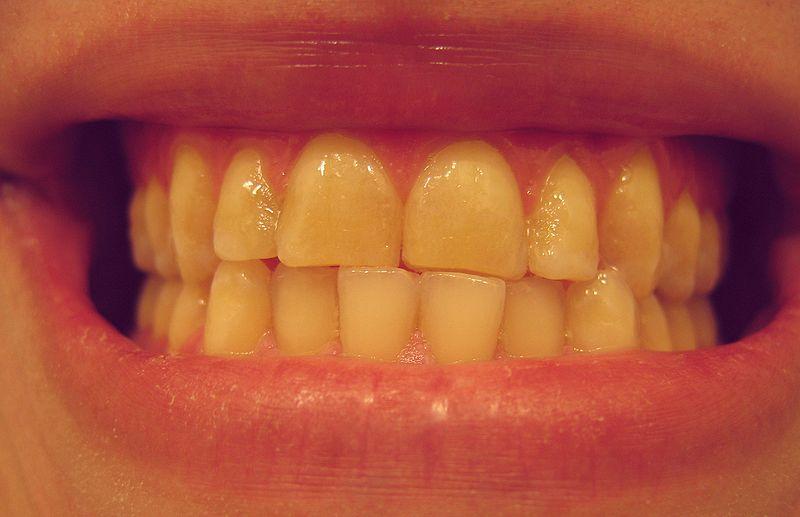 East Cobb Dentist near me