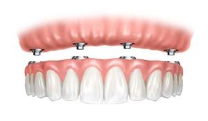 implants-dentures