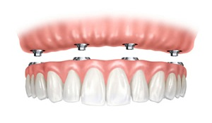 dental implants- implant retained denture
