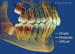 east cobb dentist near me for a tooth extraction