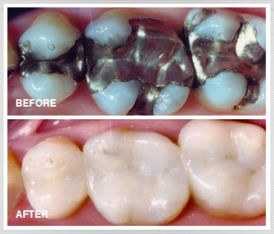 Dental amalgams and composite fillings
