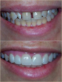 Dentist near me  for Porcelain Veneers