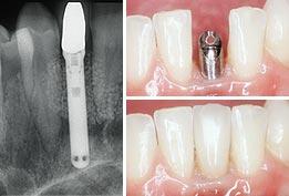 Implant dentist near me
