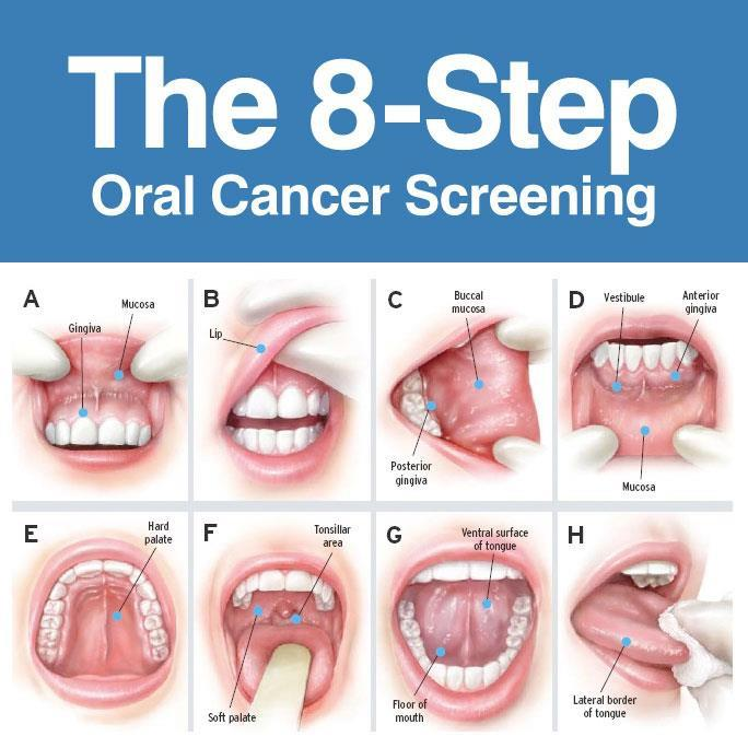 Oral-Cancer-Screening near me