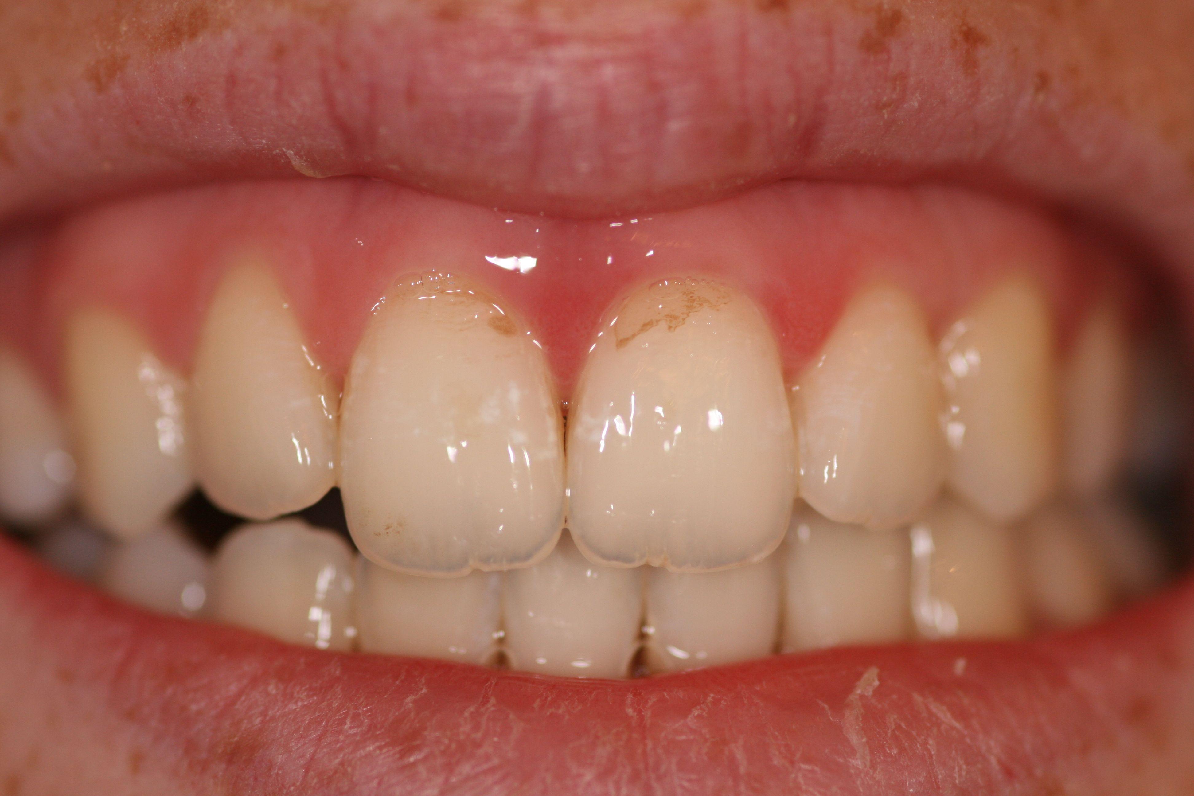 Почему стирается эмаль на передних зубах