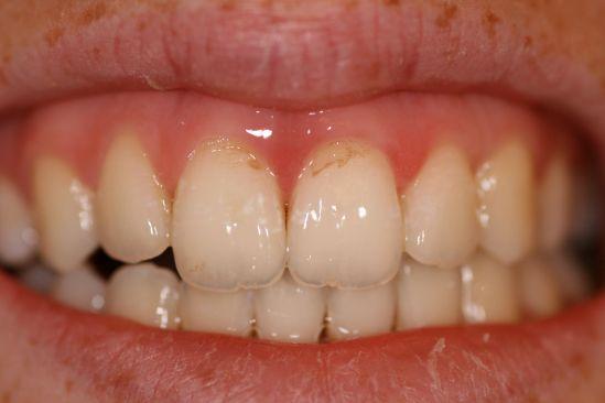 Sandy Springs dentist near me