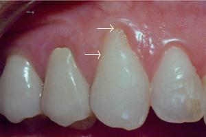 Sandy Springs Dentist root exposure