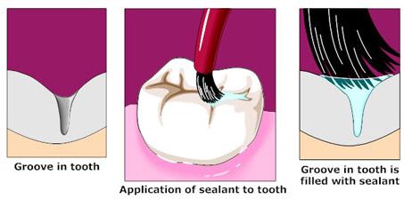 sealants_diagram