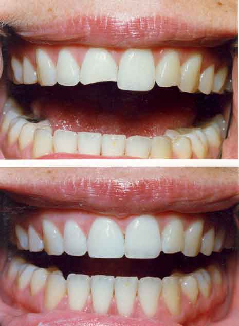 how to fix a chipped front tooth cost