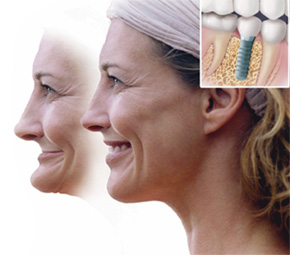 Dental implant dentist near me